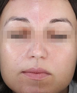 The efficacy of the mattifying formula with sebum-regulating L-Carnitine and lipid-absorbing pigments was further tested and assessed in product in use (PIU) studies.  Woman's face after split-face application
